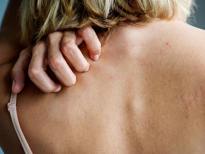 Kanapių aliejus gydo atopinį dermatitą (egzemą) ir žvynelinę