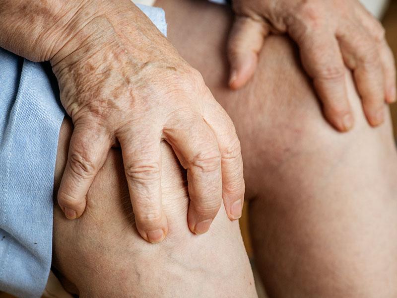 Garstyčių aliejus padeda silpninti artrito ir reumato simptomus